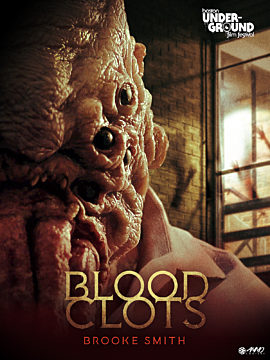 Blood Clots
